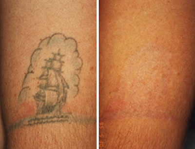 Expectations For Laser Tattoo Removal Results Laser Tattoo Removal