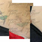 laser tattoo removal houston