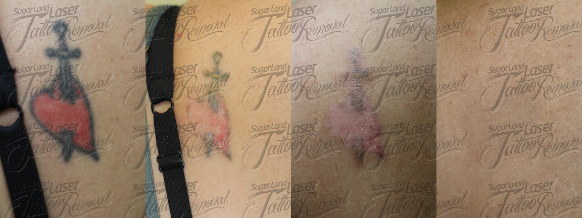 Laser Tattoo Removal Houston Before and After Pictures-Sugar Land