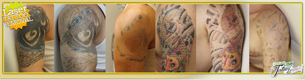 Laser Tattoo Removal Houston Sugar Land Guaranteed